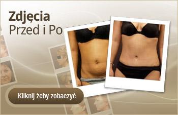 Chirurgia plastyczna - Zdjęcia przed i po operacji plastycznej